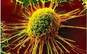 Воздействие на архитектуру раковых клеток может помочь детям