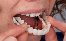 Протезирование в стоматологии