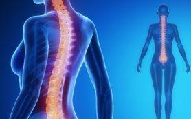 Лечение межпозвоночной грыжи: дефанотерапия доказала свою эффективность