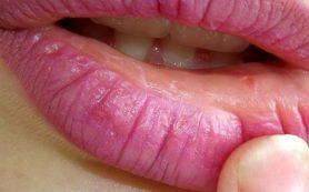 Заед на губе как лечить беременным