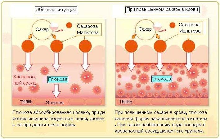Как быстро понизить высокий сахар в крови и его норма