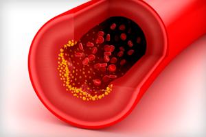 Диета при повышенном холестерине — стол №10