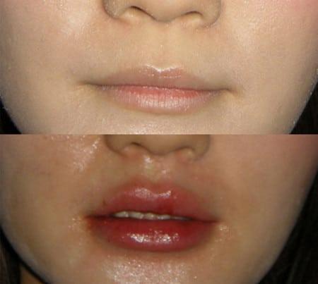 Увеличение губ: помните об осложнениях