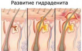 Гидраденит:  симптомы, под мышкой, в паху