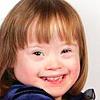 Когнитивные функции детей с синдромом Дауна можно скорректировать до рождения