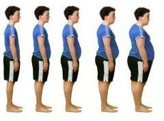 Уровень детского ожирения медленно снижается
