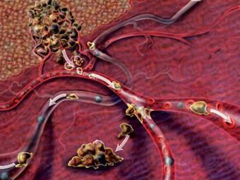 Обнаружены физические отличия раковых клеток от здоровых