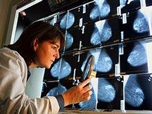 Рак груди подпитывается от мужских половых гормонов