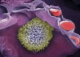 Биологическая библиотека помогла открыть потенциальный метод лечения смертельного рака крови