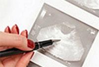 Совершен прорыв в исследовании рака яичников