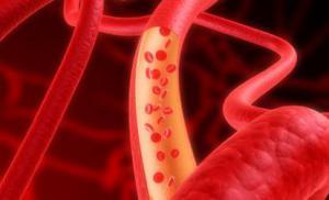 Женские гормоны берегут сосуды и защищают от рака