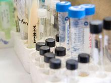 Ученые готовятся испытать вакцину, предотвращающую заражение ВИЧ