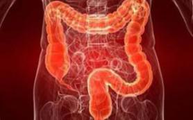 Онкологи узнали, как избежать рака толстого кишечника