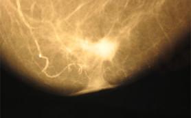 Маммография находит несуществующий рак