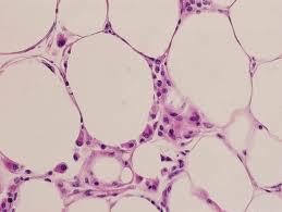 Почему одни клетки предрасположены к раку более других