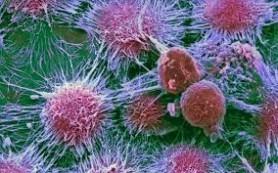 Ученые успешно применили смертельные дозы химиотерапии