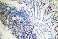 Пациентам с колоректальным раком могут помочь метаболические отпечатки опухоли