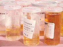 Анализ кала может стать универсальным тестом на рак