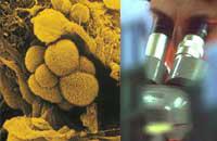 Вакцина против опухолей: мифы, реальность и будущее