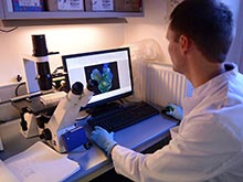Метастазы рака поддаются контролю с помощью особых наночастиц