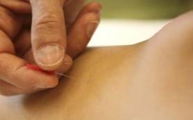 Иглоукалывание ослабляет признаки расстройства желудка при беременности
