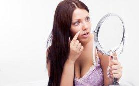 Игнорировать высыпания при менструации — не самая хорошая идея