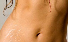 Причины растяжек у беременных