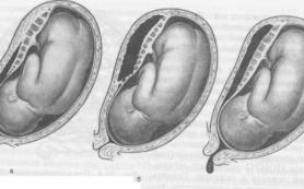 Признаки отслоения плаценты