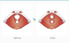 Восстановление женщины после родов: вагинопластика