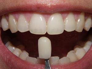 Что такое виниры на зубах