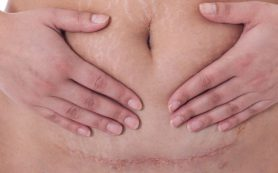 Что такое послеродовой диастаз и как с ним бороться?