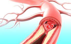 Заболевания крови и кровеносной системы