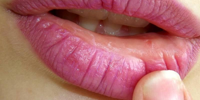 Как лечить заеды на губах?
