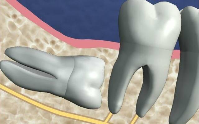 Причины и лечение ретенции зуба