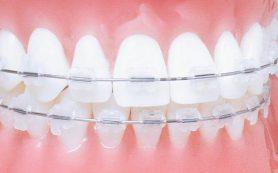 Что входит в работу врача ортодонта