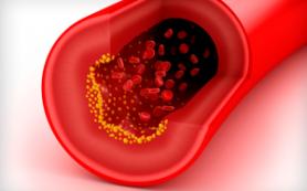 Как передается ВИЧ инфекция — пути заражения вирусом