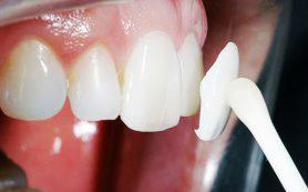 Что такое виниры на зубы?