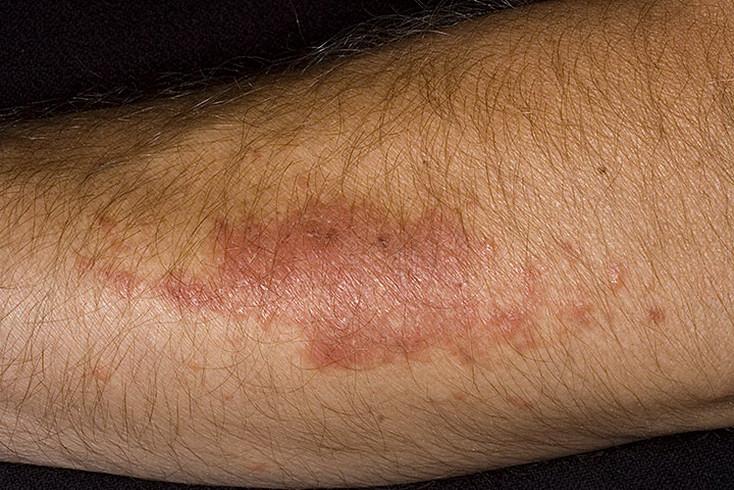 Витилиго симптомы и лечение при дерматозе