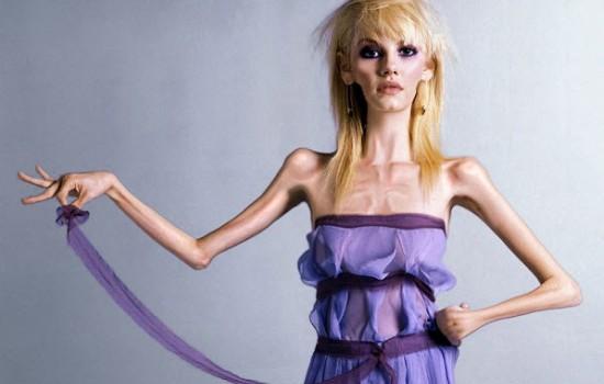 Возможно ли лечение анорексии в домашних условиях?