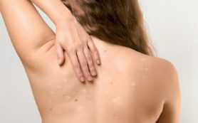 Белые пятна на коже, причина, лечение, витилиго, лишай, гипомеланоз