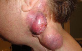 Рак кожи — базалиома, карцинома, меланома: признаки и симптомы, как выглядит, сколько живут