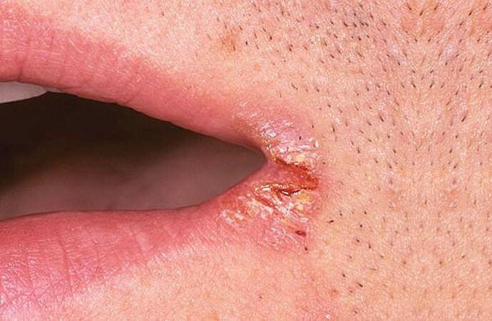 Трещины, «Заеды» в уголках рта