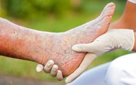 Диетотерапия при лечении тромбофлебита в домашних условиях