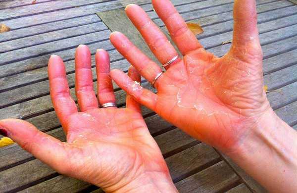Чем лечить псориаз на руках на ранней стадии
