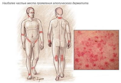 Дерматит — причины, симптомы, диагностика, лечение