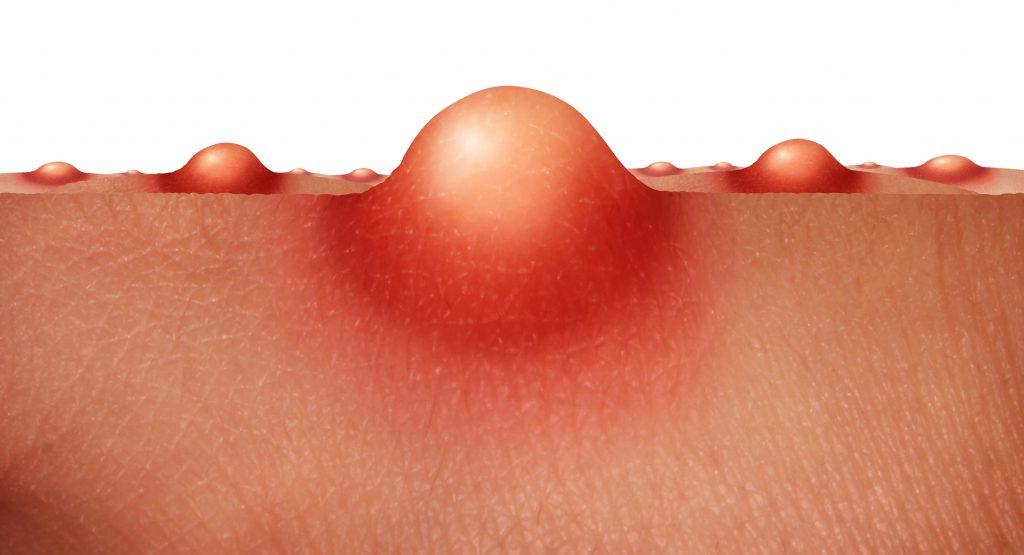 Фурункулез: причины, симптомы