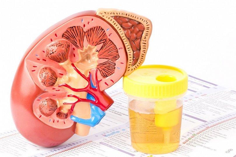 Гломерулонефрит: причины воспаления