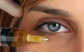 Как избавиться от мимических морщин: наносим гиалурон под глаза