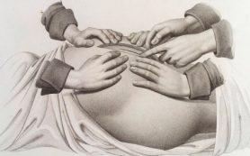 Почему врачи предпочитают кесарево сечение