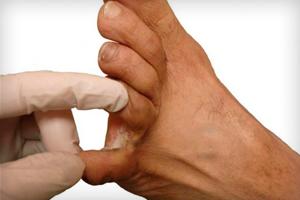 Как избавиться от мозолей между пальцами ног?